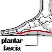 Three Ways to Cure Plantar Fasciitis